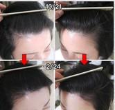 生え際薄毛改善